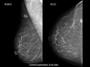 Hemangioma of the Breast