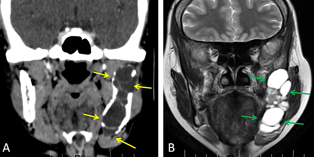 Ameloblastoma of the Mandible - Coronal 3D CT scan and MRI