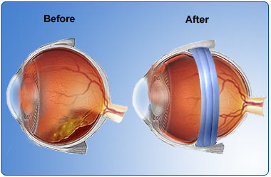 Diagram of scleral buckle