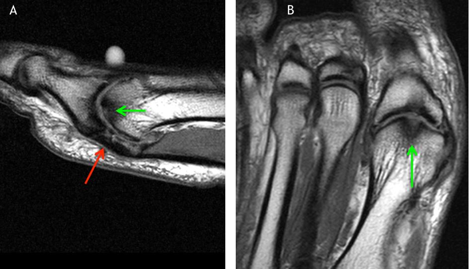 MRI of Chronic Turf Toe