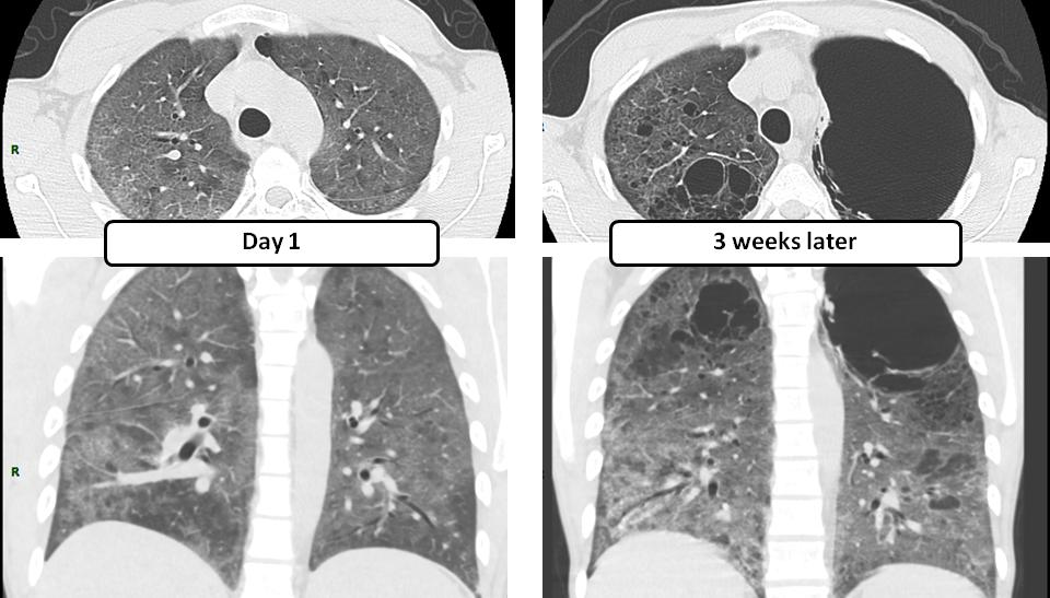 Pulmonary AVM