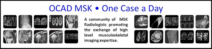 OCAD MSK MRI