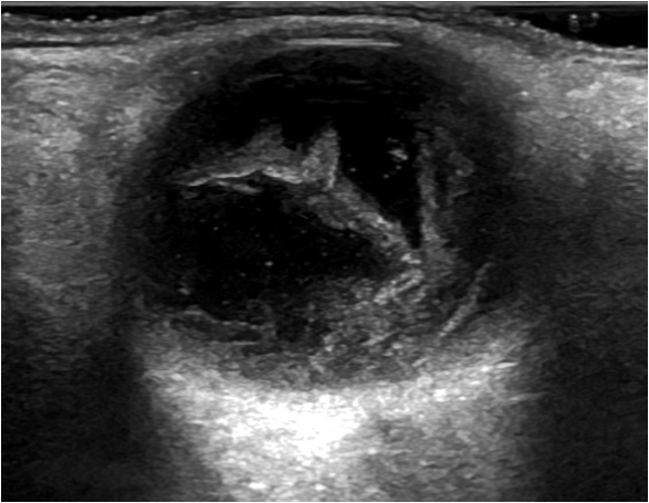 Ultrasound of retinal detachment