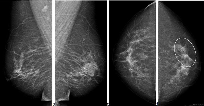 Mammography x ray and breast tissue