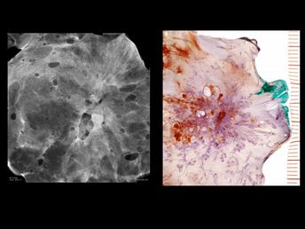 Juvenile Papillomatosis (Swiss Cheese Disease) of the Breast