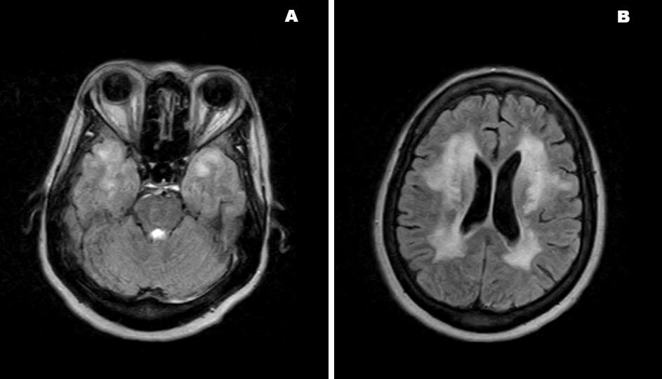 Cerebral Autosomal Dominant Arteriopathy with Subcortical Infarcts and Leukoencephalopathy (CADASIL) MRI