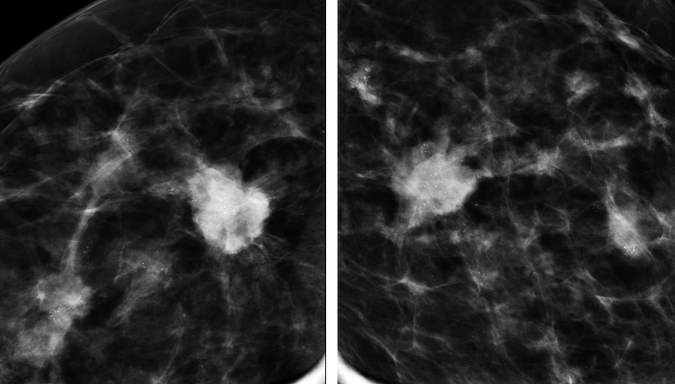 Magnification views of spiculated breast cancer with microcalcifications