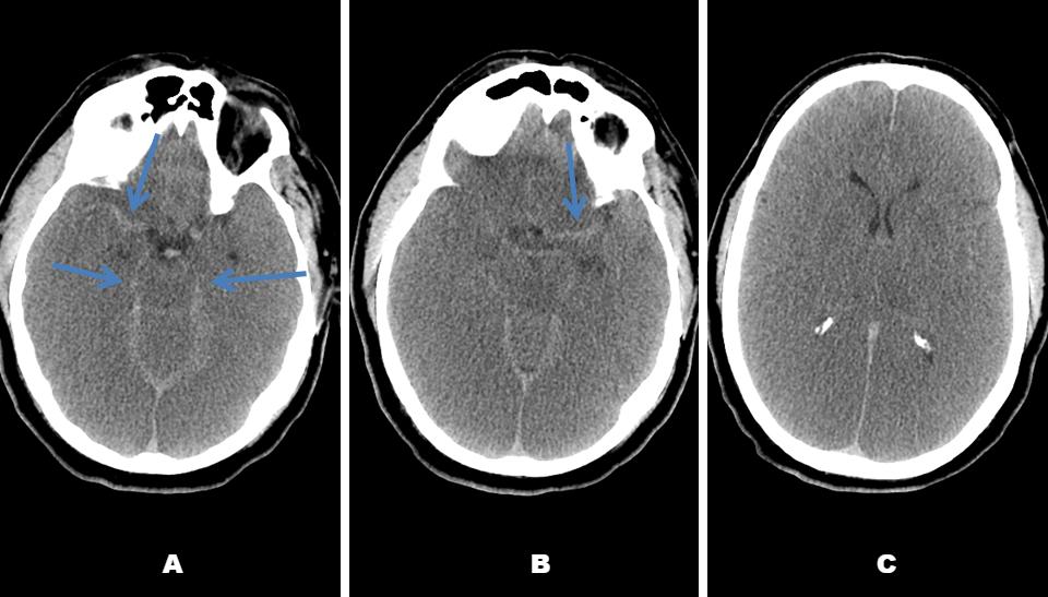 Pseudo-Subarachnoid Hemorrhage due to Diffuse Cerebral Edema