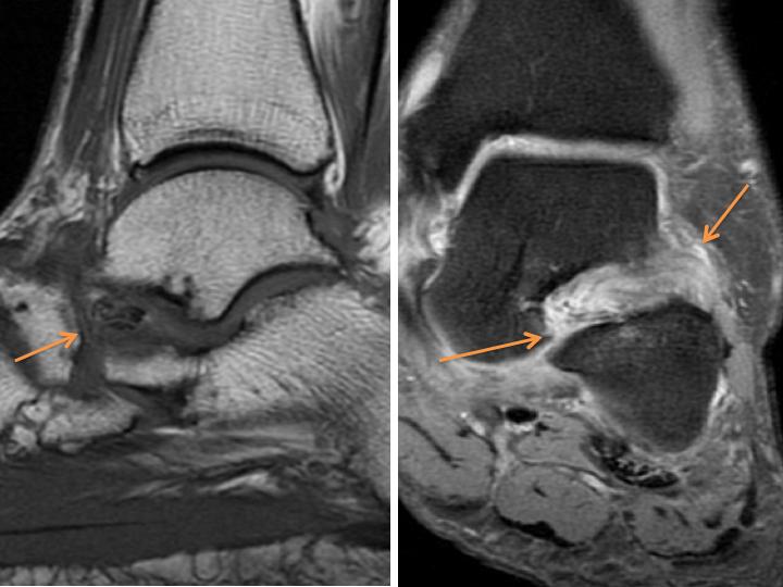 Sinus Tarsi Syndrome MRI
