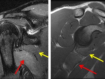 Lower Subscapular Muscle Denervation