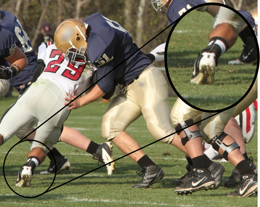 Turf toe mechanism of injury in football player