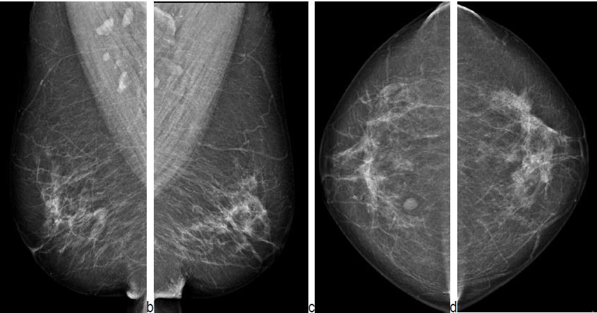 Radial Scars and Invasive Breast Cancer - Earlier mammogram