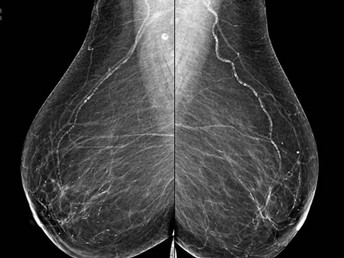 Top Ten Myths About Mammography