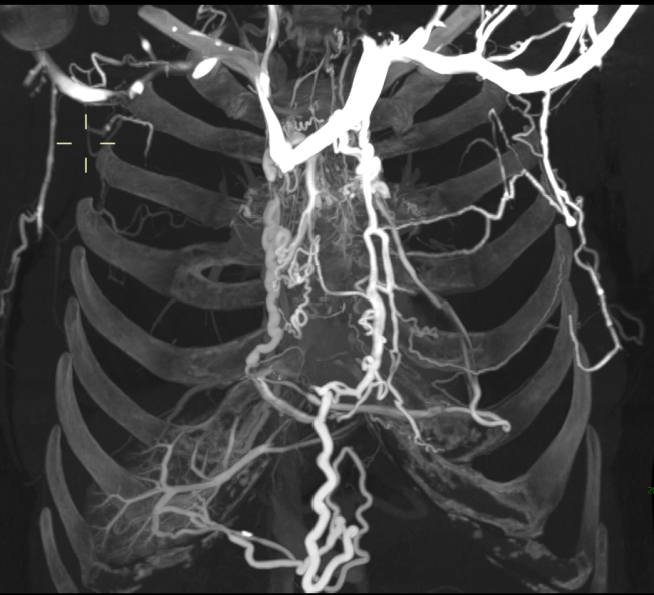 CT Scan of SVC Occlusion with Portal Vein Collaterals