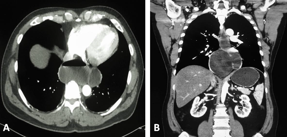 Epiphrenic Esophageal Diverticulum and Achalasia CT Scan