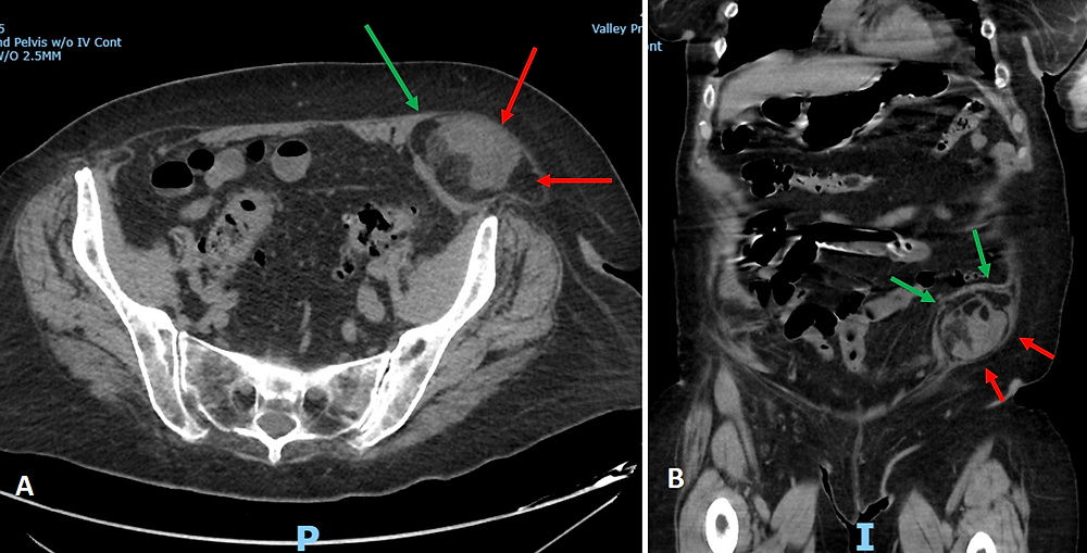 CT Scan of Incarcerated Spigelian Hernia