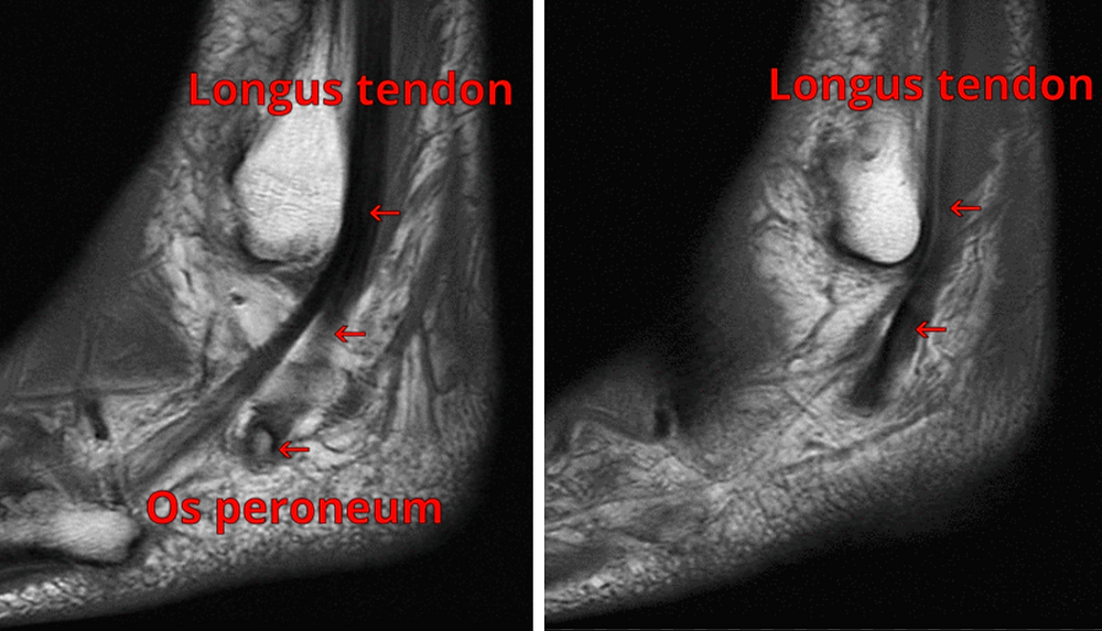 MRI of Painful Os Peroneum Syndrome - POPS