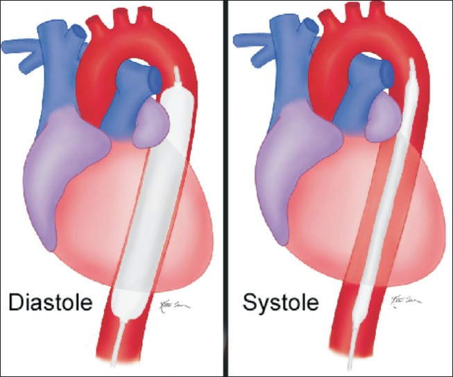 Diagram of Intra-aortic balloon pump IABP