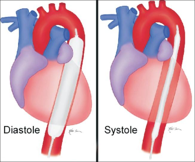 Diagram of Intra-aortic balloon pump IABP