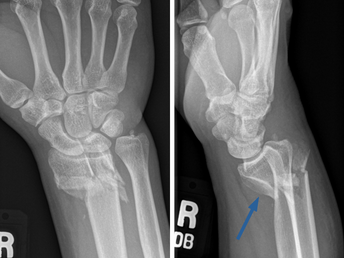 Smith Fracture