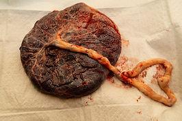 Placenta Options Homebirth South Carolina
