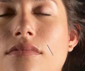 Constitutional Facial Rejuvenation