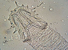 Gyrodactylus_hooks.jpg
