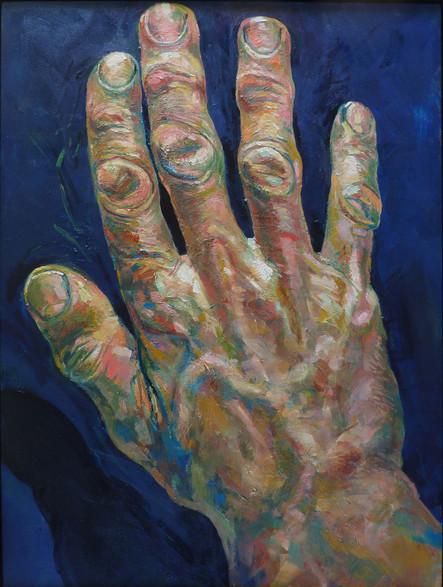 Les mains de MK, droite