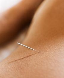 Kvinna som får akupunktur