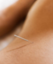 Acupuncture treatment Belfast