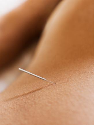 Kvinde fik akupunktur