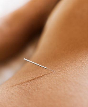 Mujer acupuntura Recibir