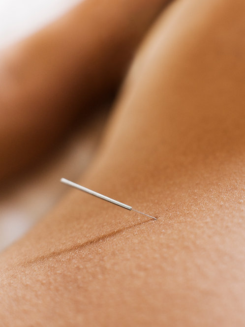 Dry Needling-30 minutes
