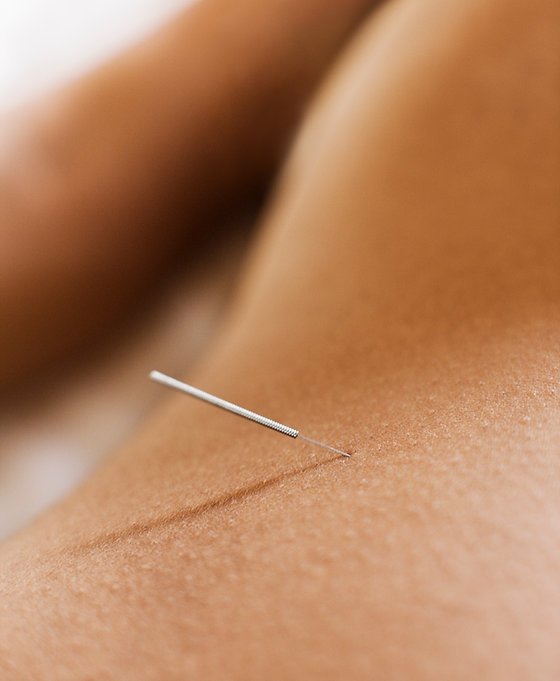 Woman Receiving Acupuncture