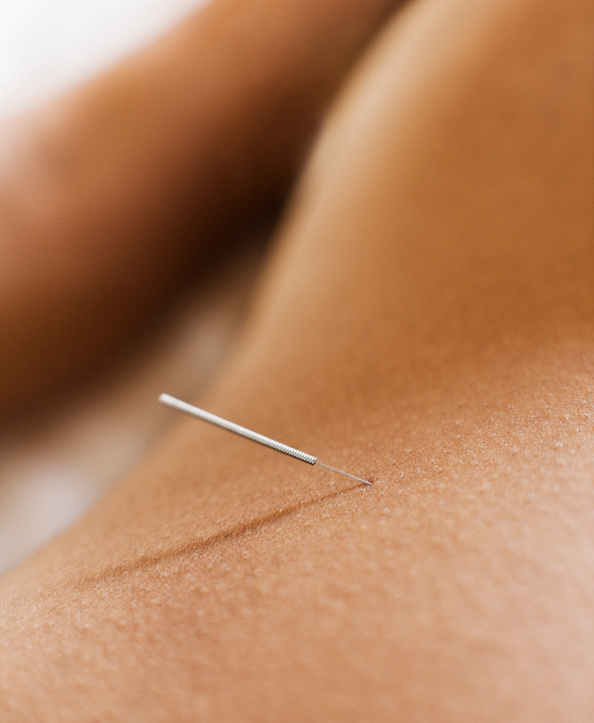 WHAT TO DO AFTER YOUR ACUPUNCTURE TREATMENT