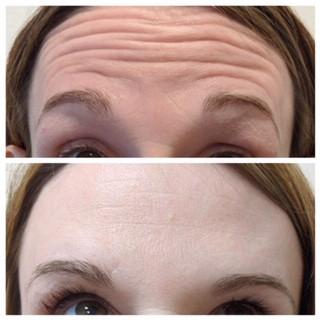 Forehead Neurotoxin
