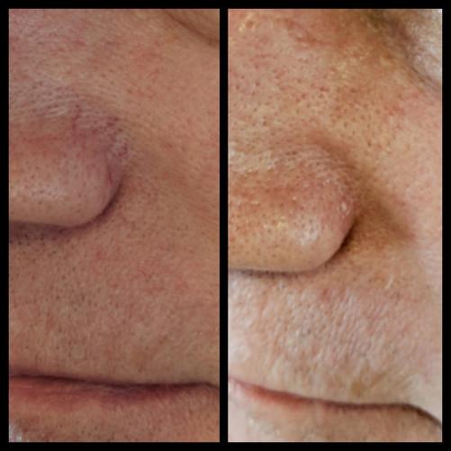 Vascular Lesion Photo Treatment