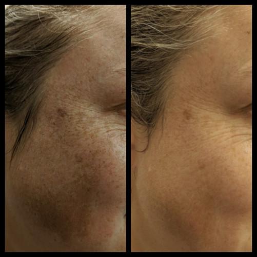 Age Spots and Melasma Treatment