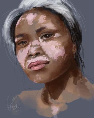 Onny Somboon Vitiligo
