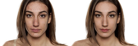 Photoshop Acne Removal