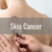 skin cancer.png