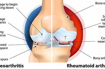 Osteoarthrtis rheumaoid arthritis