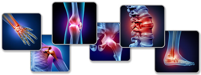 iStock-horizontal%20bones%20arthritis_ed