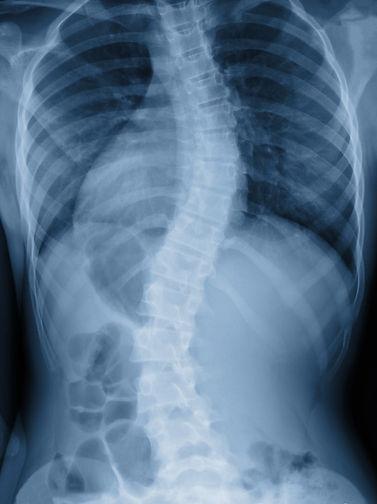 iStock-scoli spine.jpg