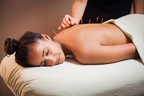 acupuncture, isabelle guisolan, MTC, médecine traditionnelle chinoise, aiguille, soins-acupuncture.com,