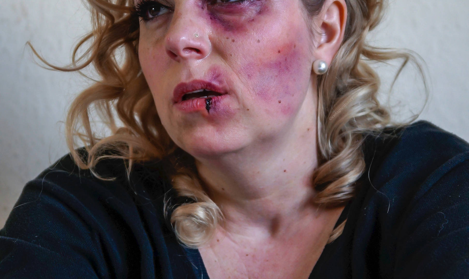 make-up-bruises-woman-special-effects-va
