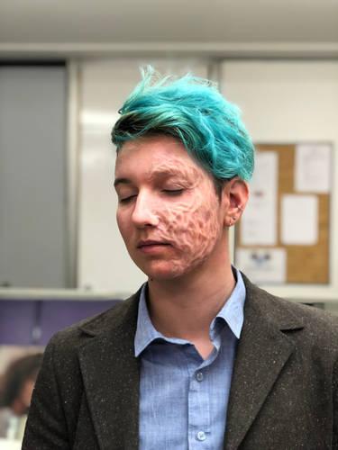 silicone-prosthetic-burn-scar-make-up-sp