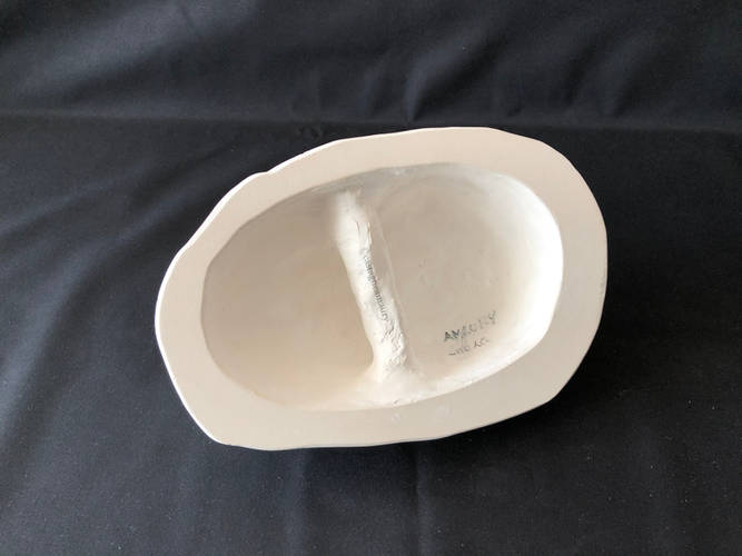 lifecast-plaster-laura-4-castagne-amaury
