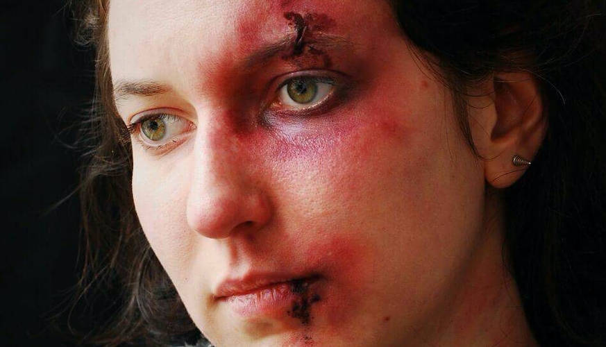 make-up-bruises-woman-special-effects-no