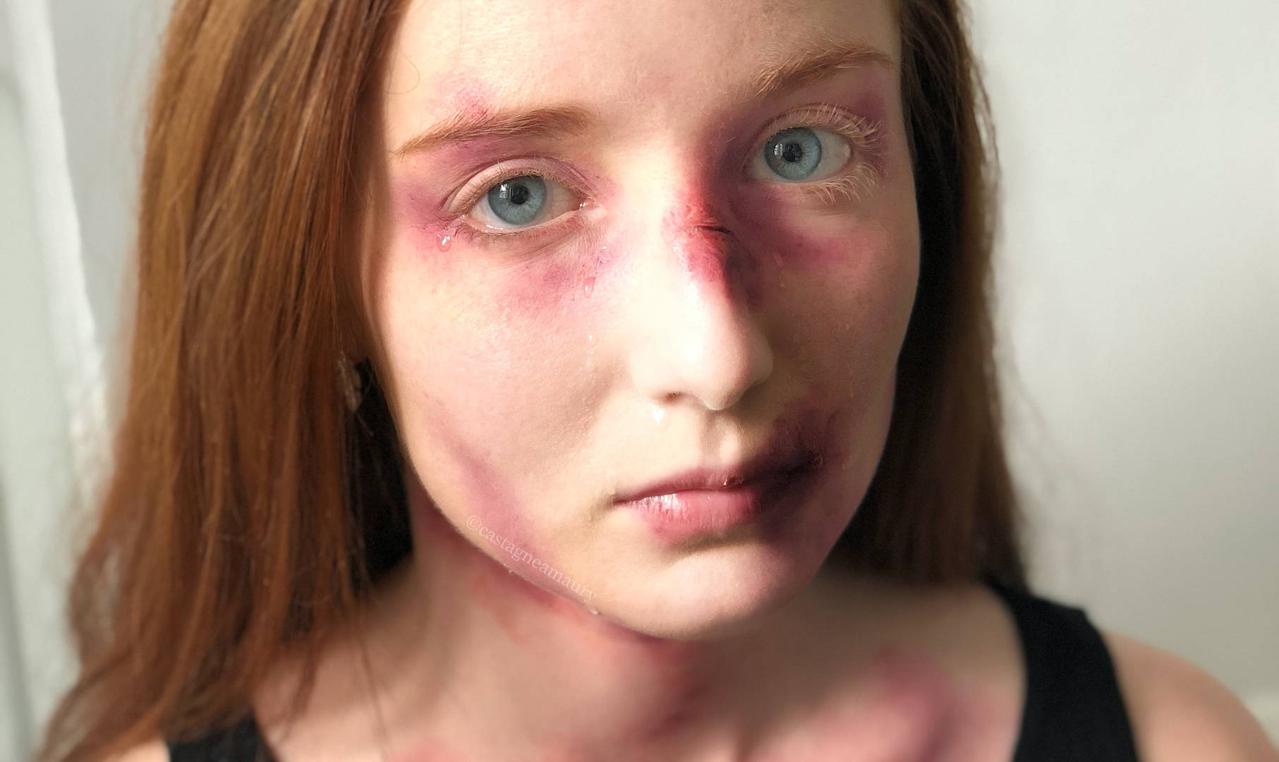 make-up-bruises-woman-special-effects-so